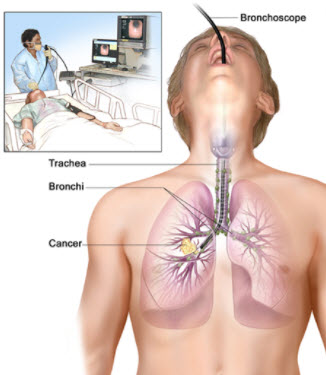 The Trachea: Function, Diseases, And Respiratory Health