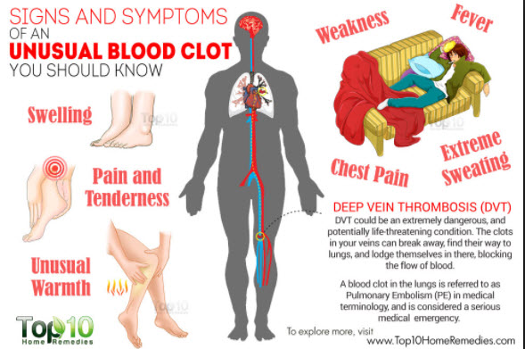 Deep Vein Thrombosis Symptoms Causes And Treatments